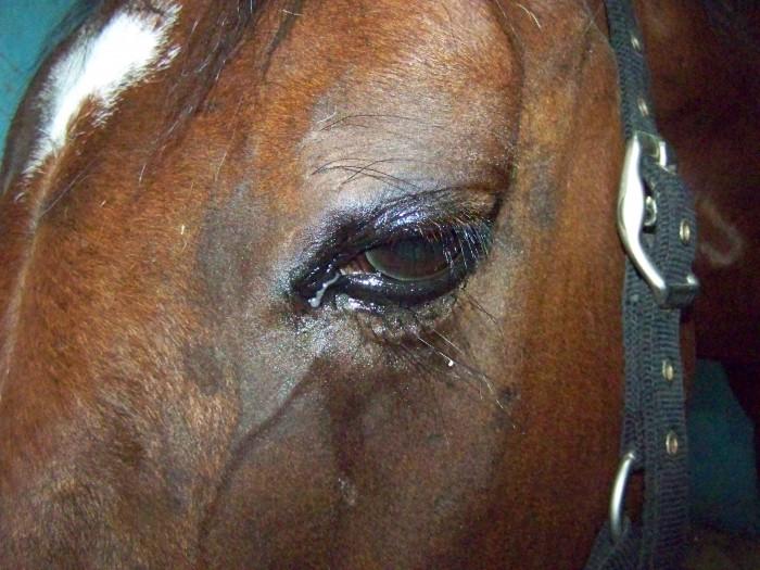De forts oedèmes sous les yeux sur les pommettes
